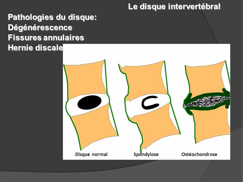 Le disque intervertébral Pathologies du disque: Dégénérescence