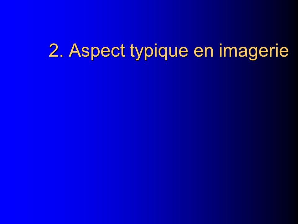 2. Aspect typique en imagerie