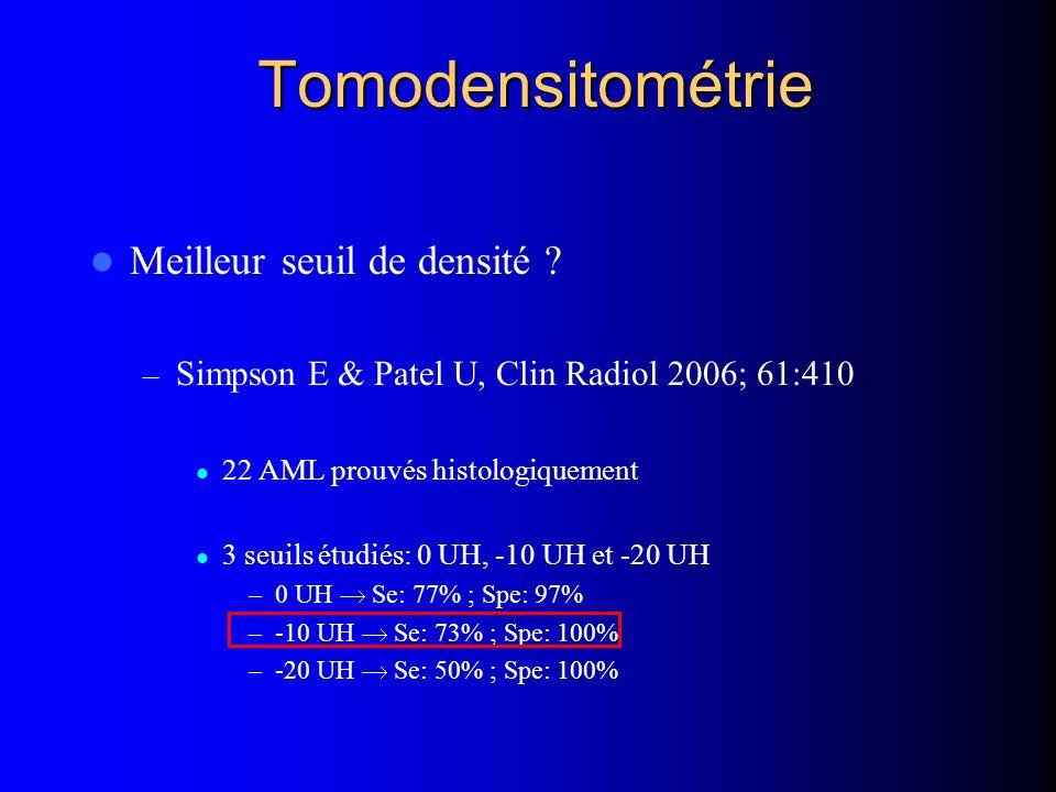 Tomodensitométrie Meilleur seuil de densité