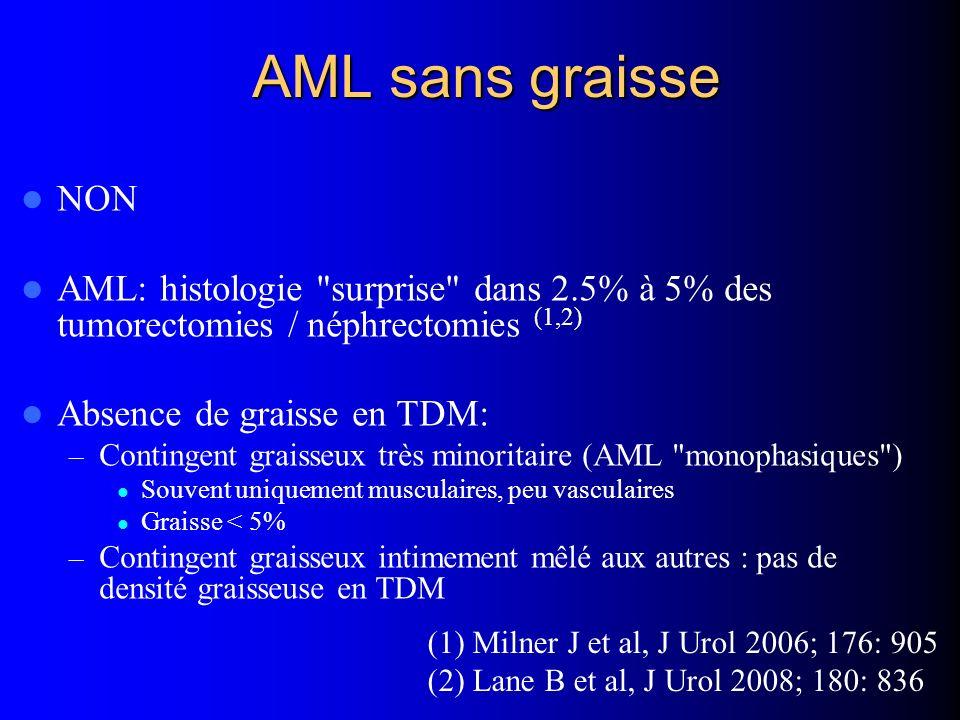AML sans graisse NON. AML: histologie surprise dans 2.5% à 5% des tumorectomies / néphrectomies (1,2)