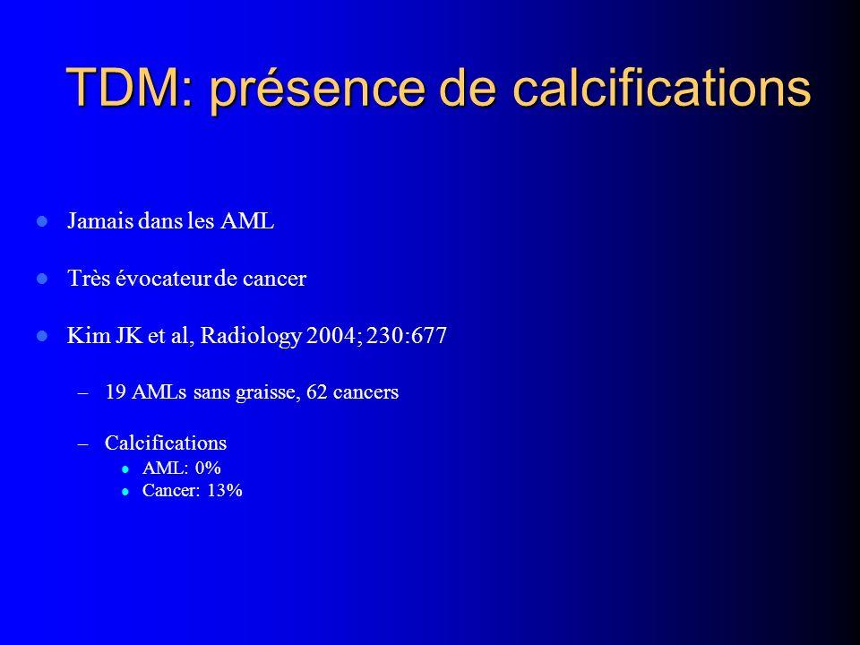 TDM: présence de calcifications