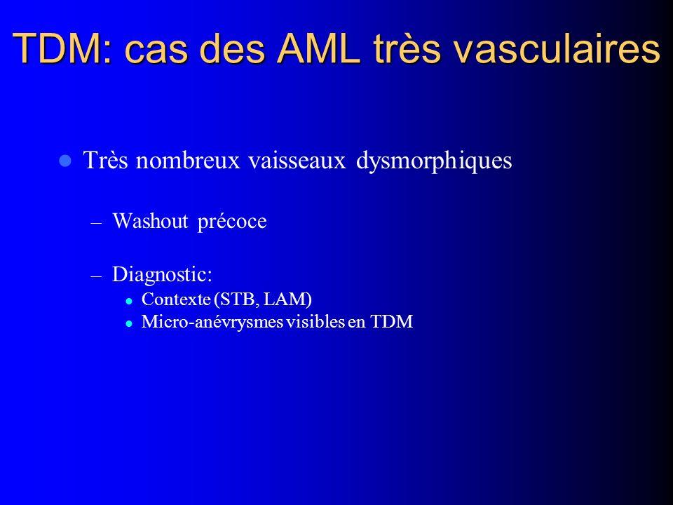 TDM: cas des AML très vasculaires