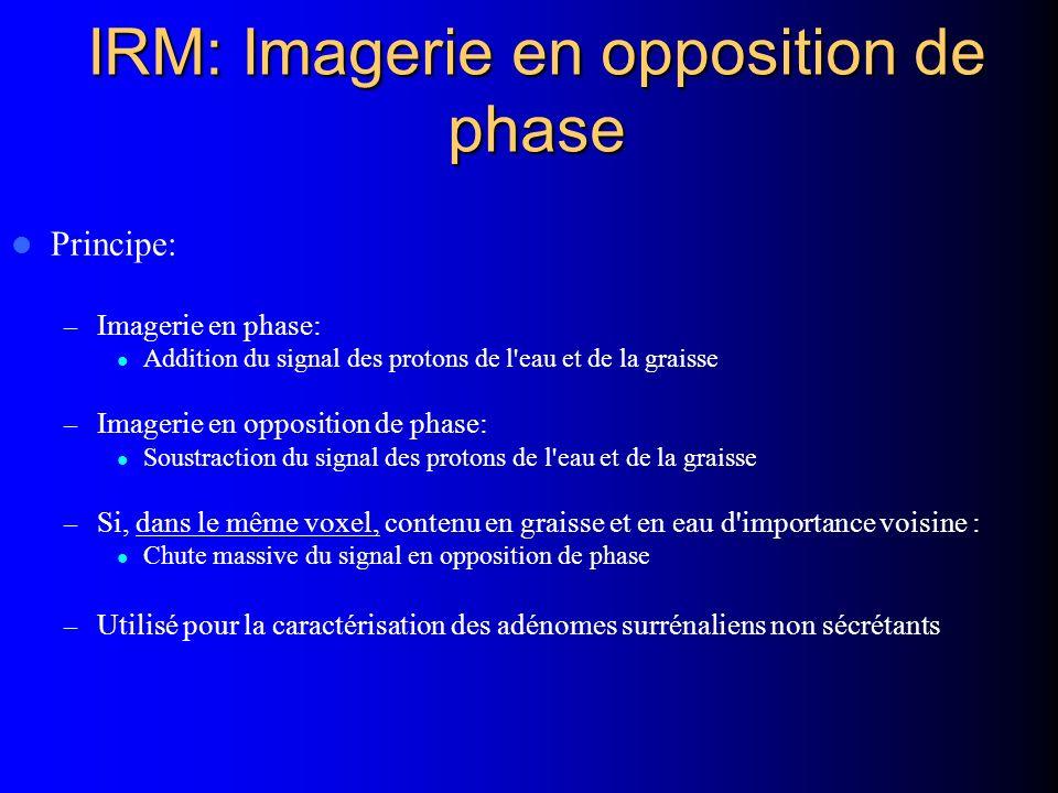 IRM: Imagerie en opposition de phase