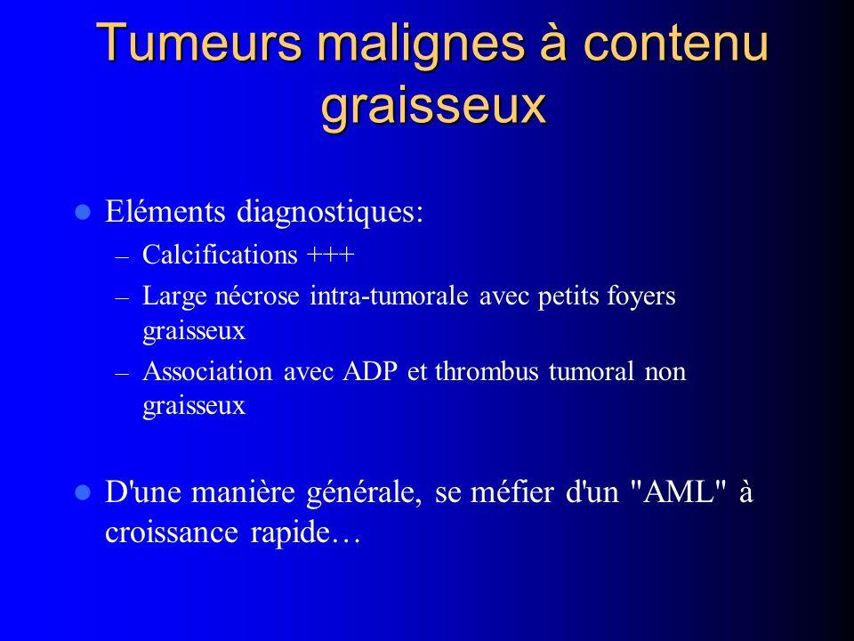 Tumeurs malignes à contenu graisseux