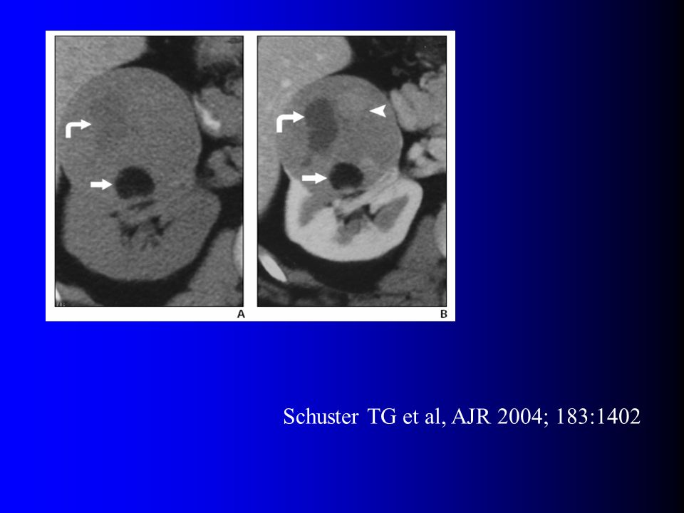 Schuster TG et al, AJR 2004; 183:1402
