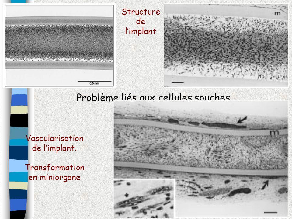 Problème liés aux cellules souches