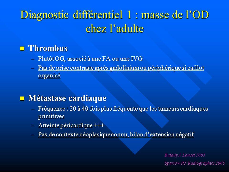 Diagnostic différentiel 1 : masse de l'OD chez l'adulte