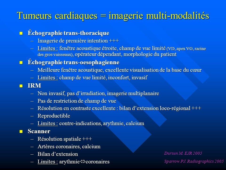 Tumeurs cardiaques = imagerie multi-modalités