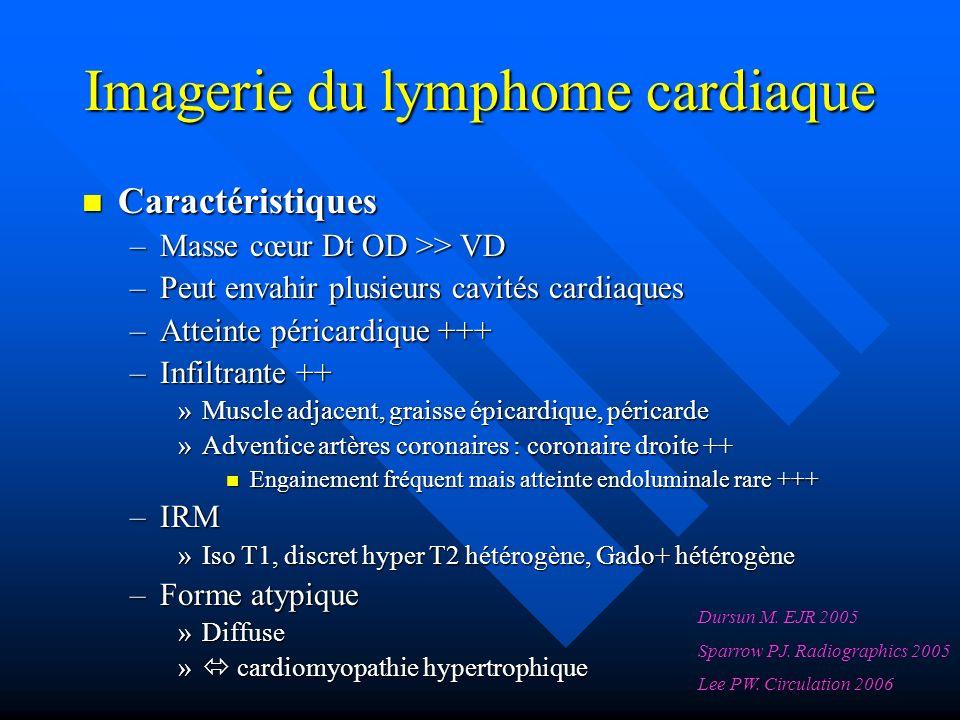 Imagerie du lymphome cardiaque