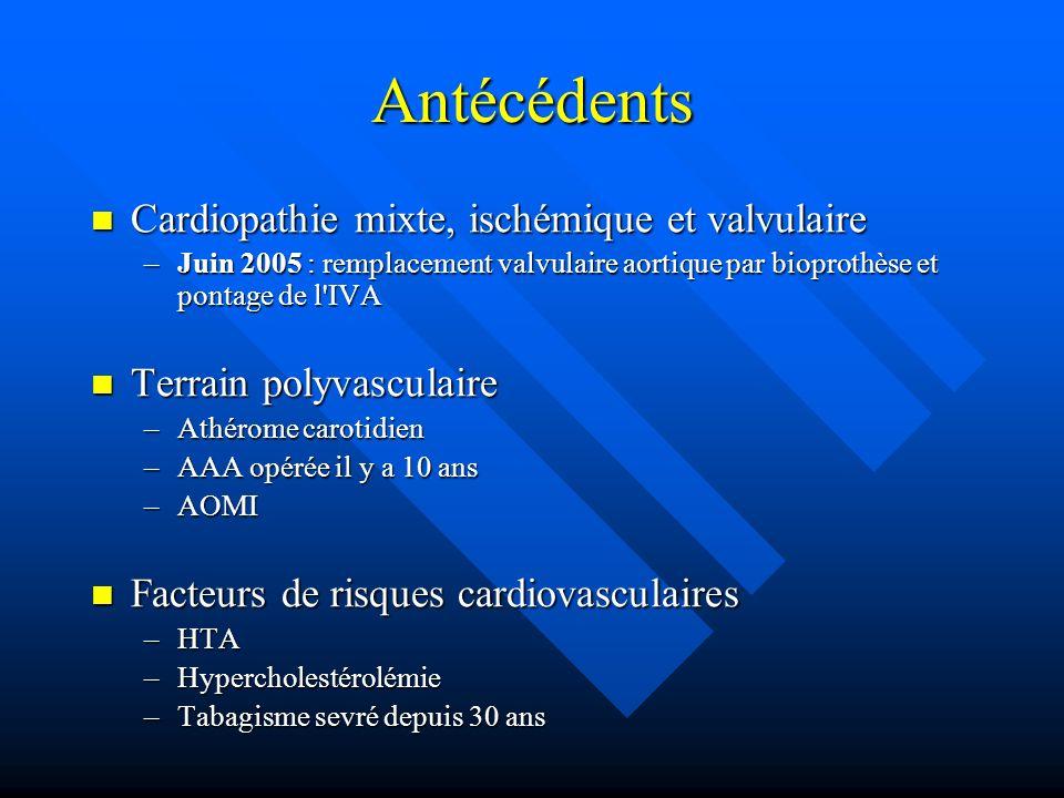 Antécédents Cardiopathie mixte, ischémique et valvulaire