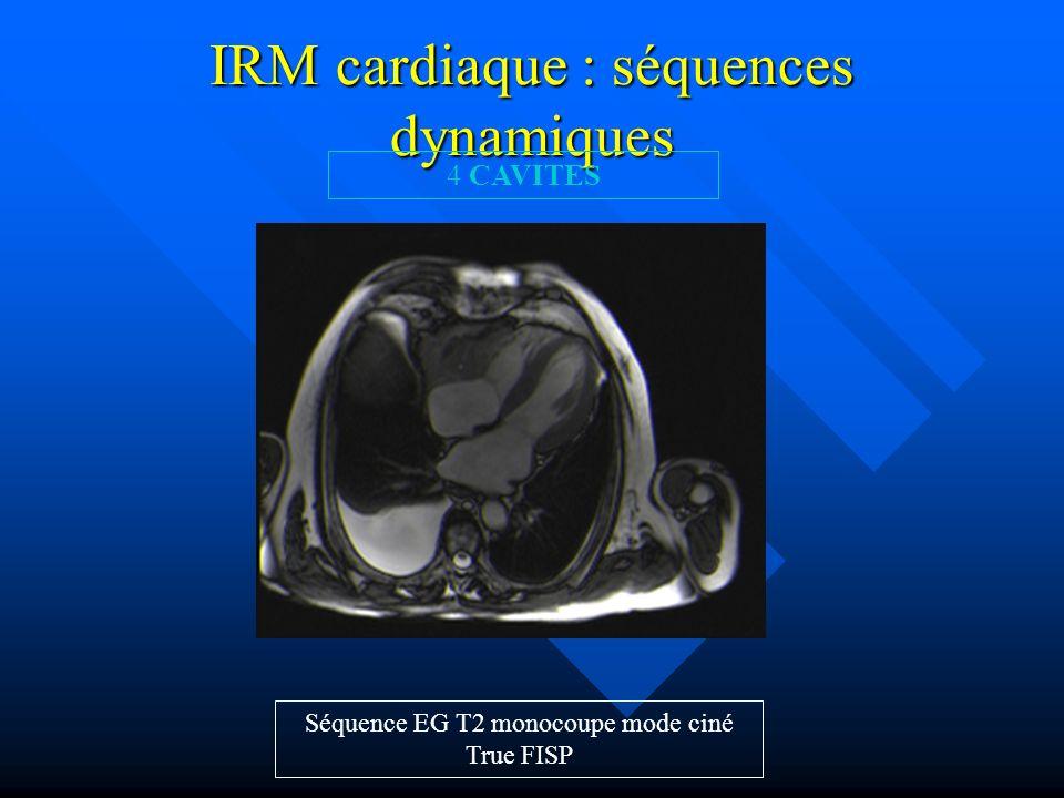 IRM cardiaque : séquences dynamiques