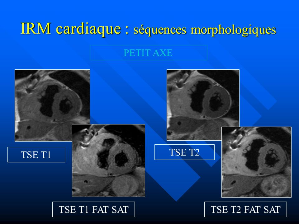 IRM cardiaque : séquences morphologiques