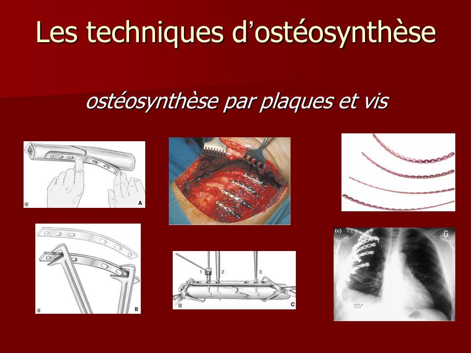 Les techniques d'ostéosynthèse