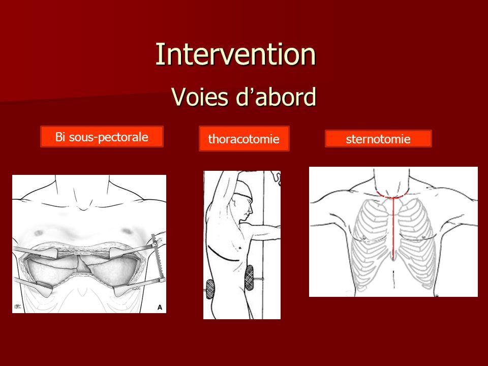 Voies d'abord Intervention Bi sous-pectorale thoracotomie sternotomie