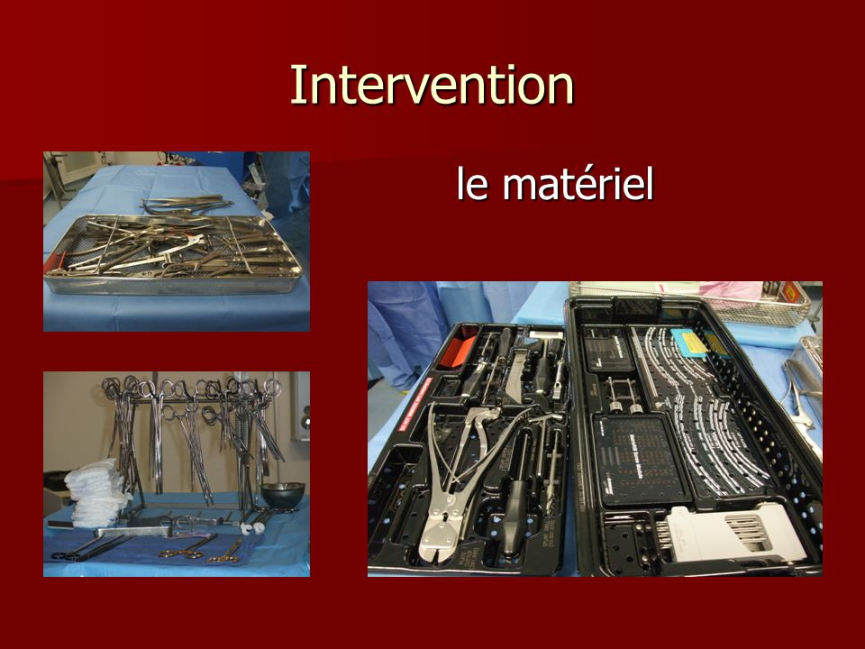 Intervention le matériel
