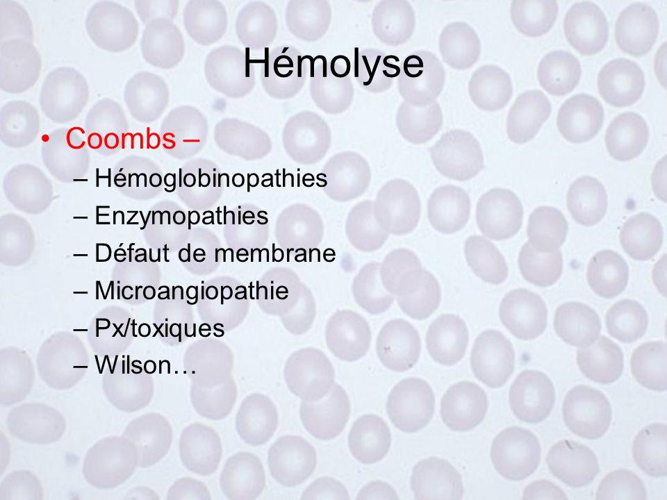Hémolyse Coombs – Hémoglobinopathies Enzymopathies Défaut de membrane