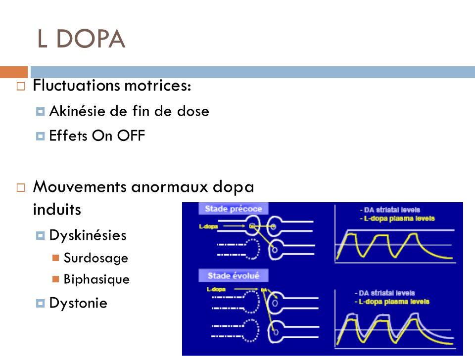 L DOPA Fluctuations motrices: Mouvements anormaux dopa induits