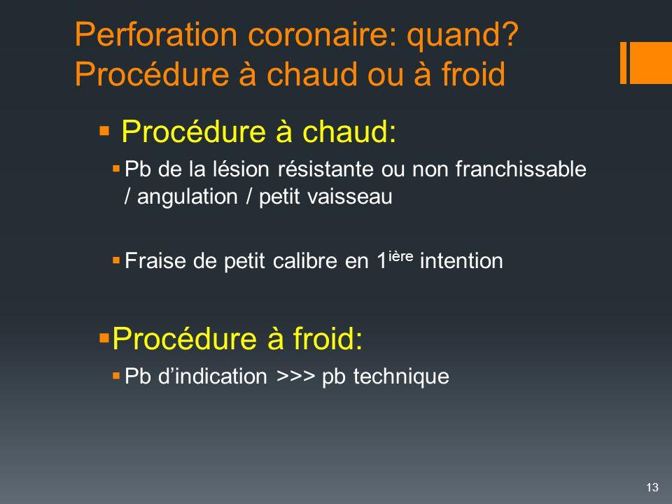 Perforation coronaire: quand Procédure à chaud ou à froid