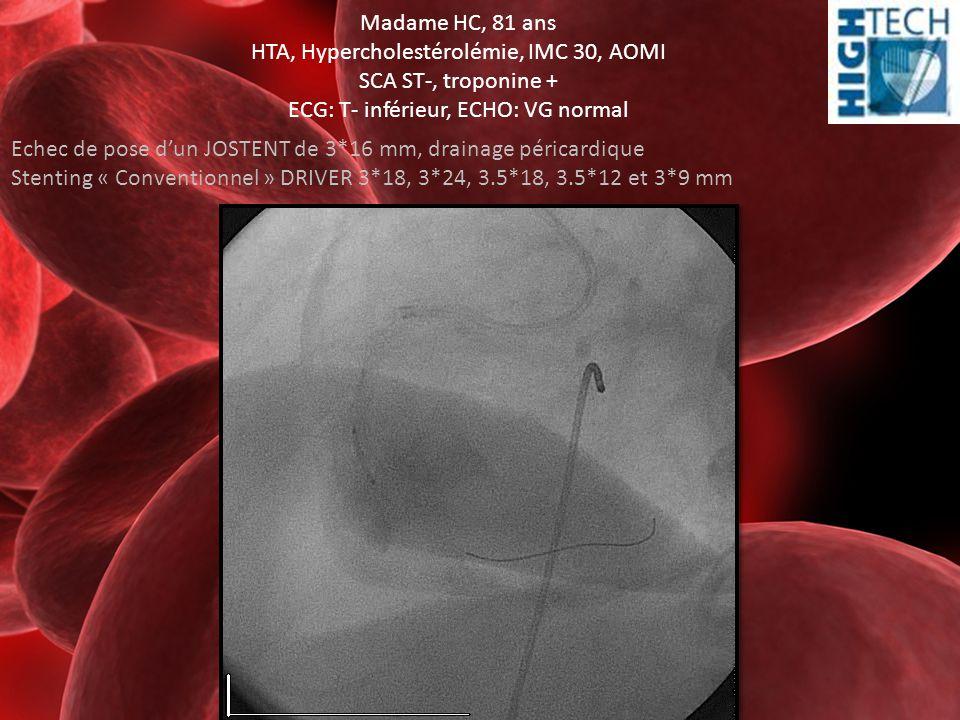 HTA, Hypercholestérolémie, IMC 30, AOMI SCA ST-, troponine +