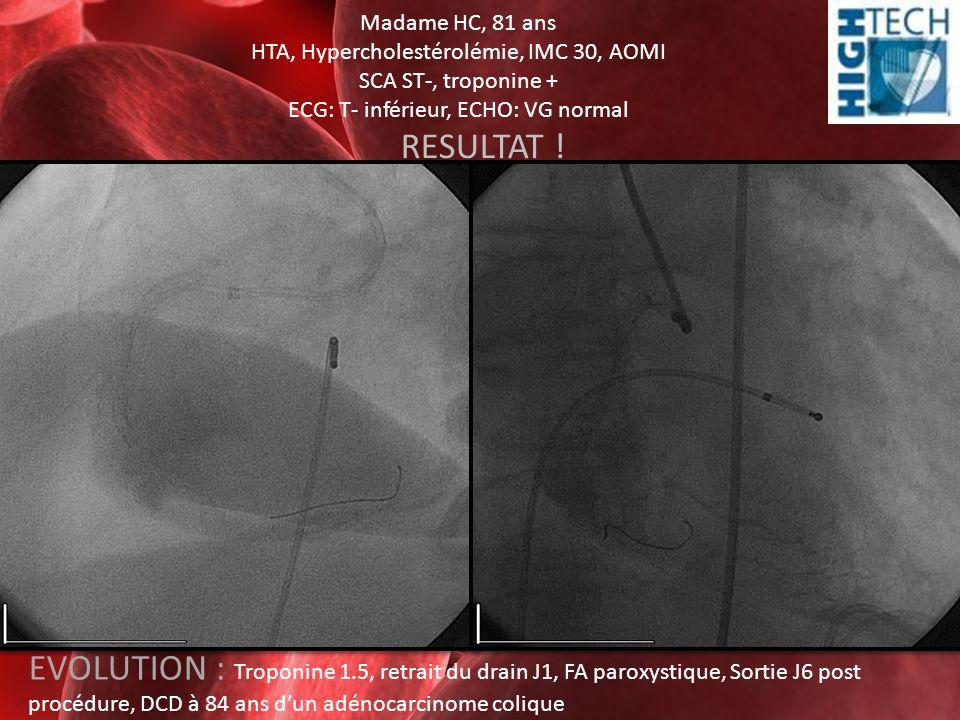 Madame HC, 81 ans HTA, Hypercholestérolémie, IMC 30, AOMI. SCA ST-, troponine + ECG: T- inférieur, ECHO: VG normal.