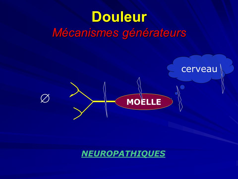 Douleur Mécanismes générateurs