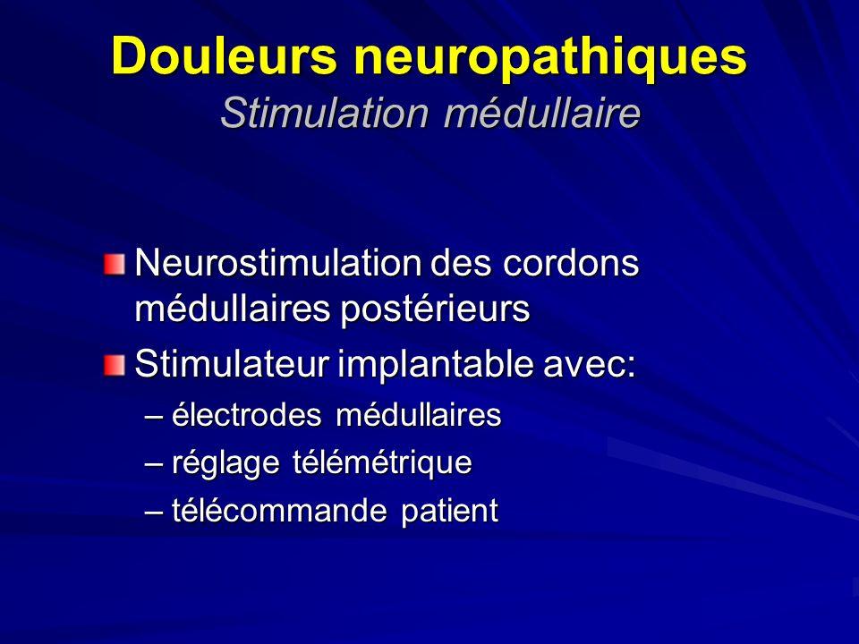 Douleurs neuropathiques Stimulation médullaire
