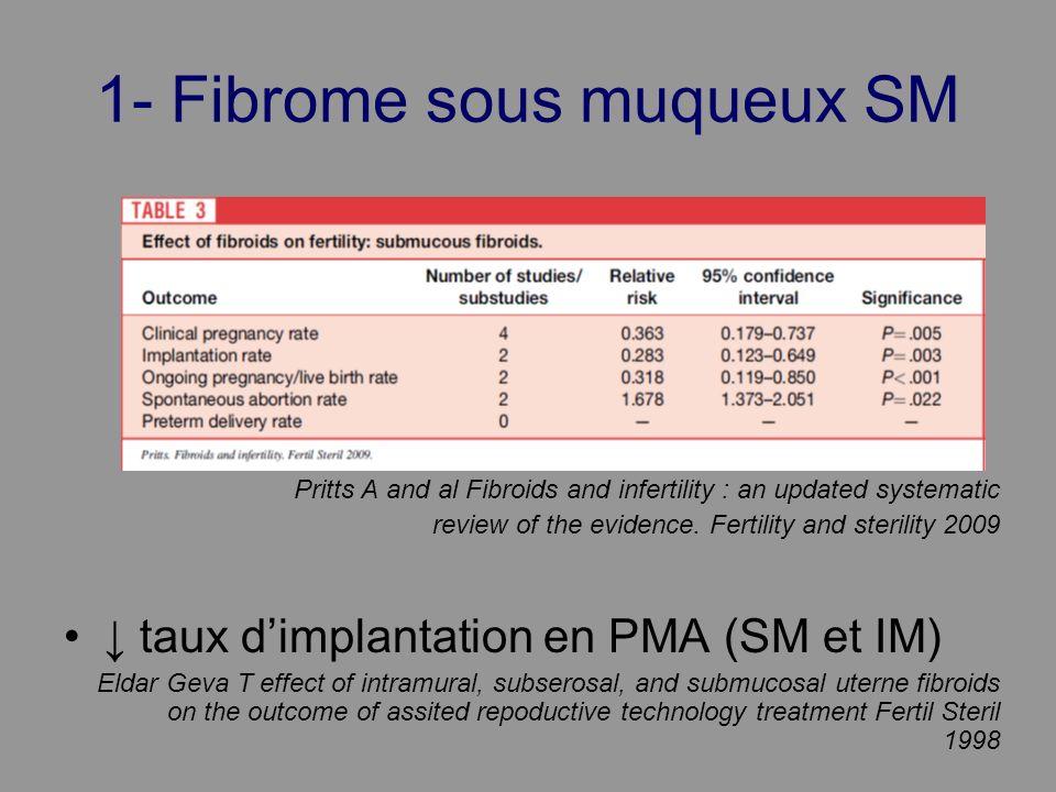 1- Fibrome sous muqueux SM