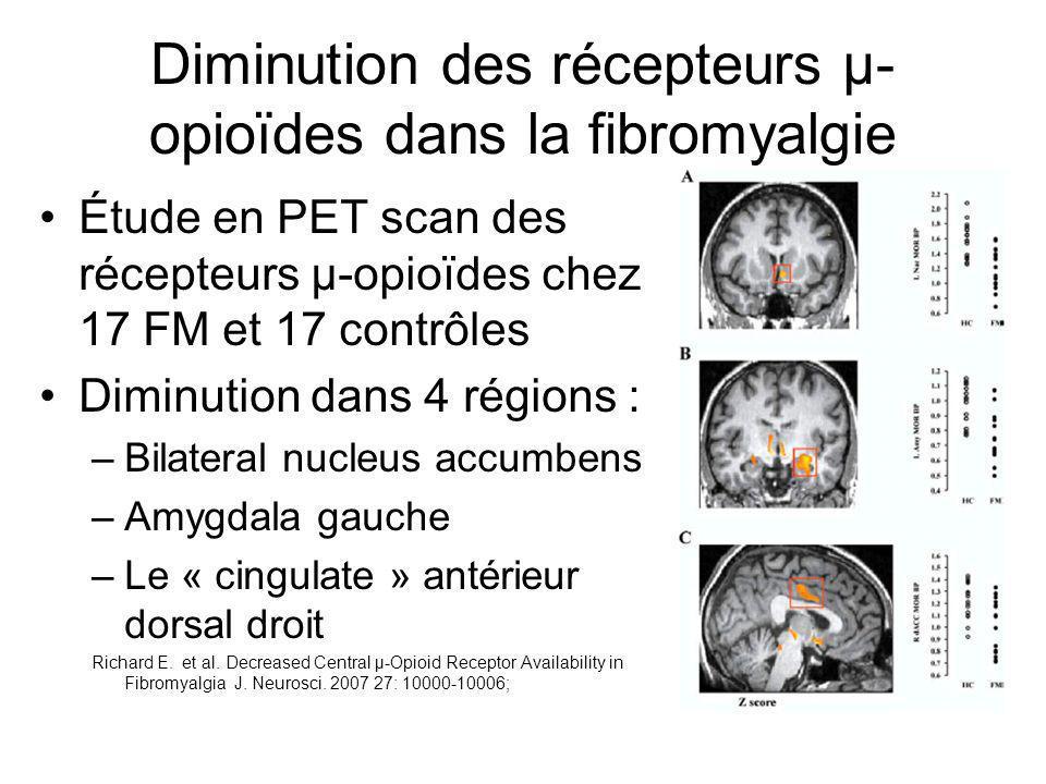 Diminution des récepteurs µ-opioïdes dans la fibromyalgie