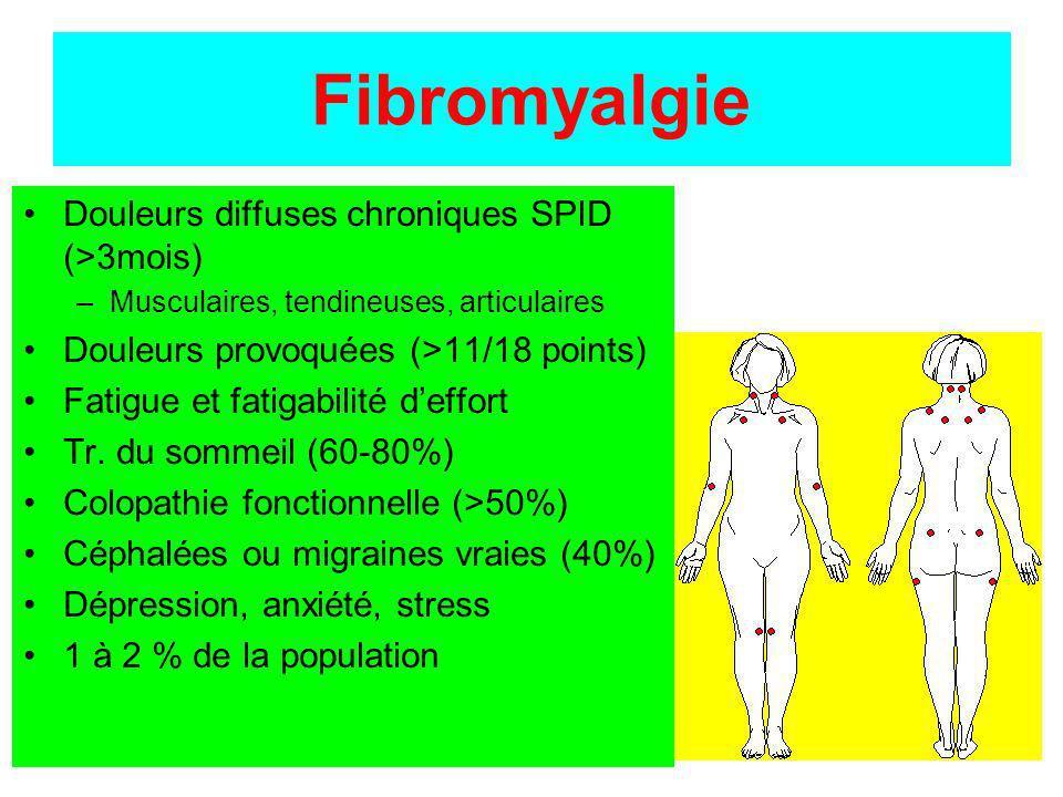 Fibromyalgie Douleurs diffuses chroniques SPID (>3mois)