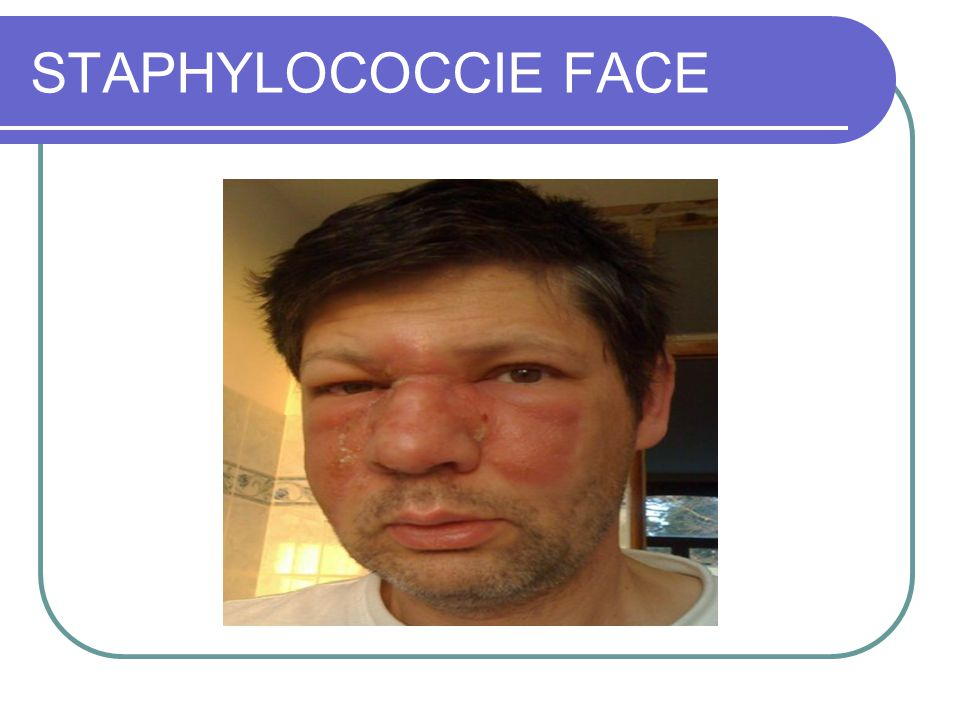 STAPHYLOCOCCIE FACE