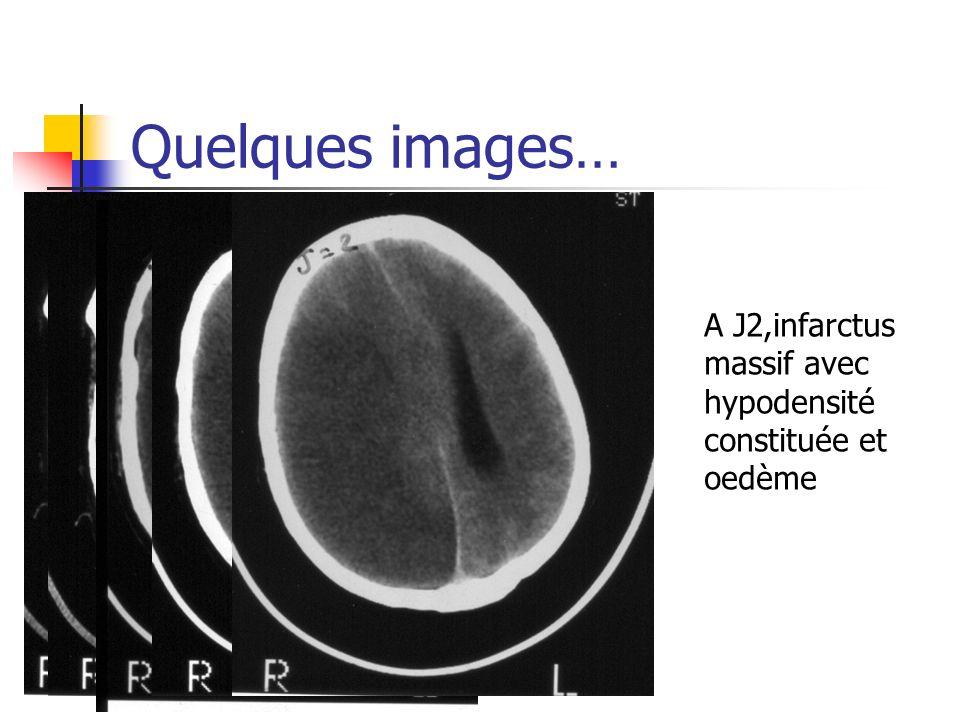 Quelques images… A J2,infarctus massif avec hypodensité constituée et oedème
