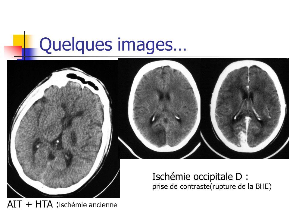 Quelques images… Ischémie occipitale D : AIT + HTA :ischémie ancienne
