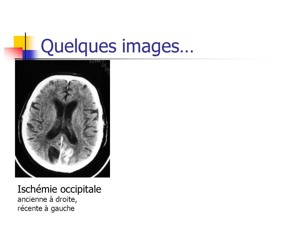 Quelques images… Ischémie occipitale ancienne à droite,