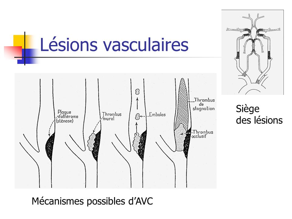Lésions vasculaires Siège des lésions Mécanismes possibles d'AVC