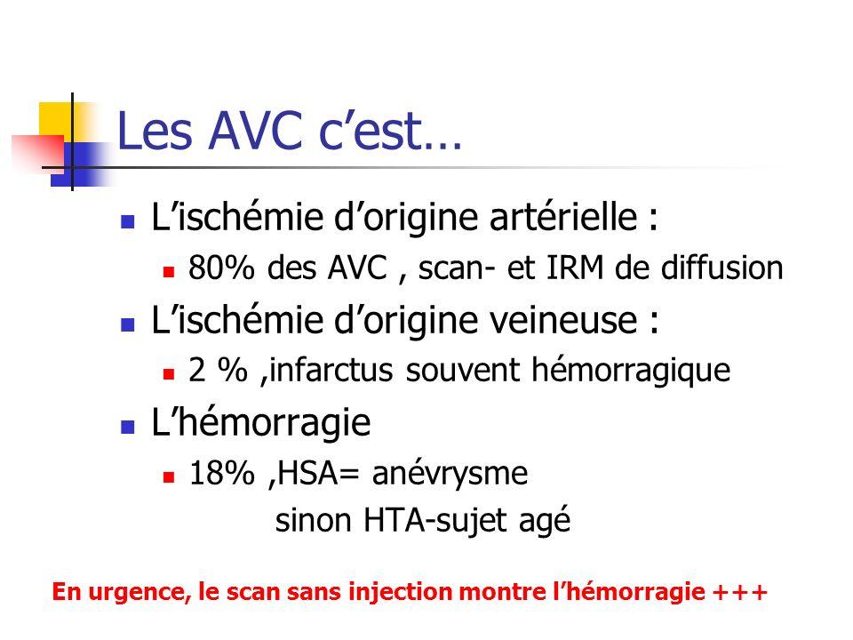 Les AVC c'est… L'ischémie d'origine artérielle :
