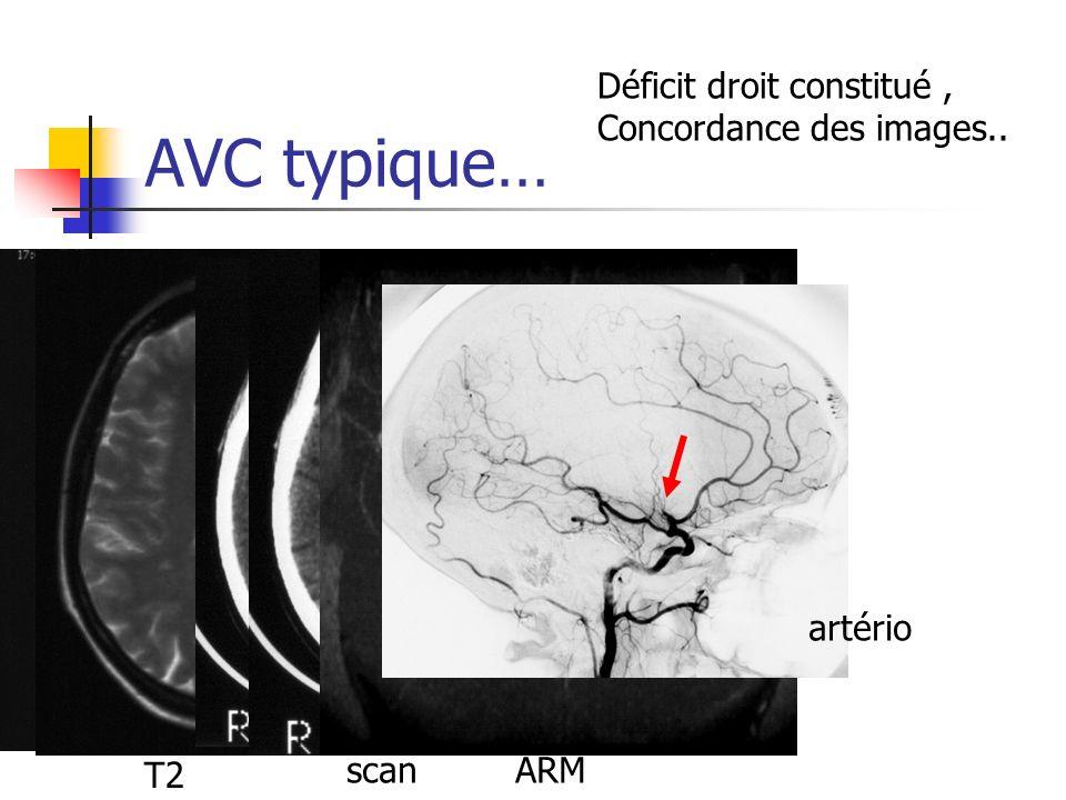 AVC typique… Déficit droit constitué , Concordance des images..