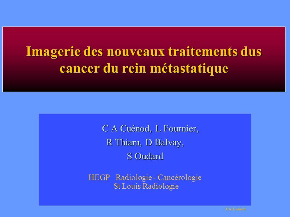 Imagerie des nouveaux traitements dus cancer du rein métastatique