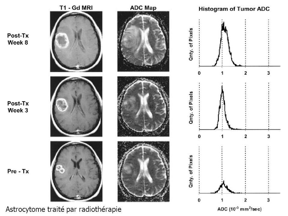 Astrocytome traité par radiothérapie