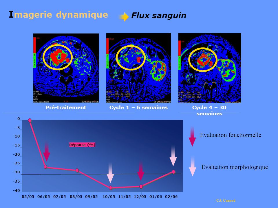 Imagerie dynamique Flux sanguin Evaluation fonctionnelle