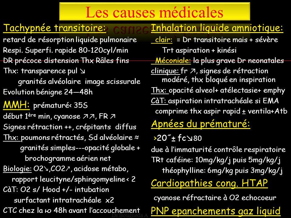 Les causes médicales Tachypnée transitoire: MMH: prématuré< 35S