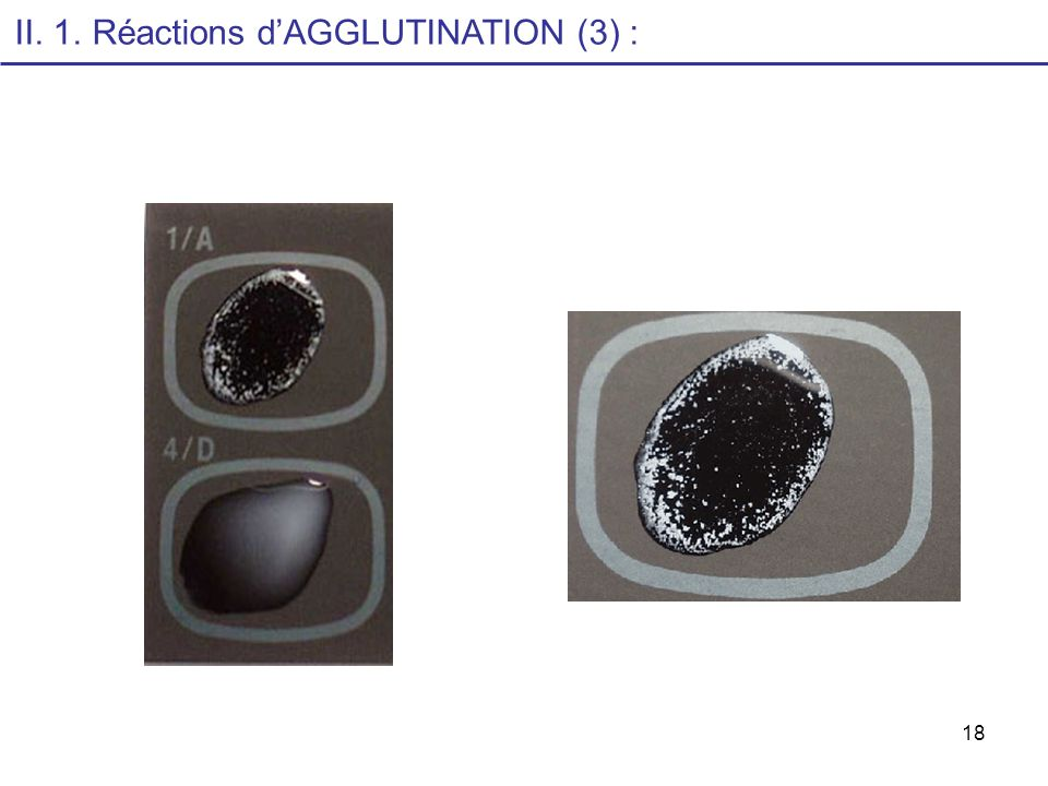 II. 1. Réactions d'AGGLUTINATION (3) :