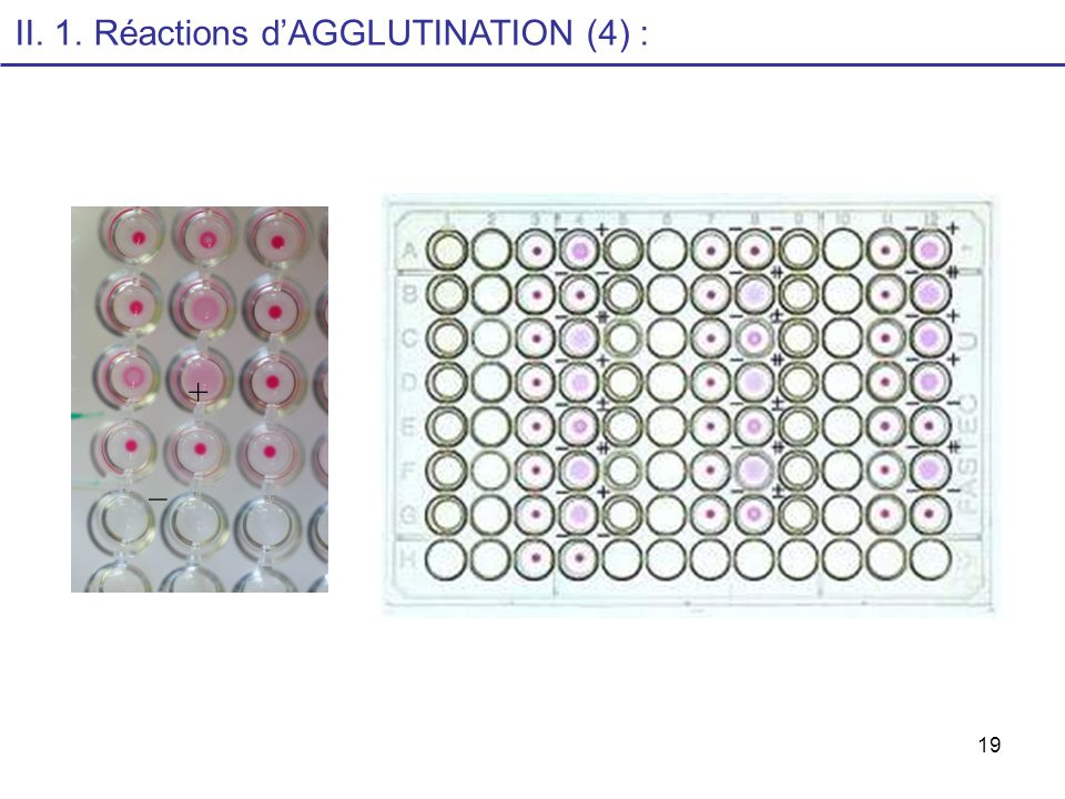 II. 1. Réactions d'AGGLUTINATION (4) :
