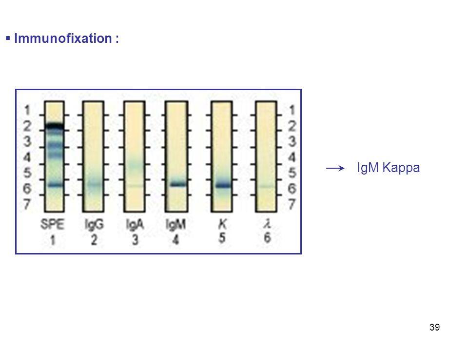 Immunofixation : IgM Kappa