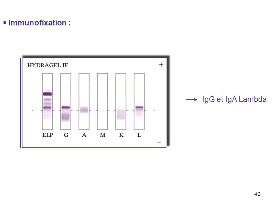 Immunofixation : IgG et IgA Lambda
