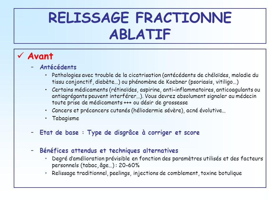 RELISSAGE FRACTIONNE ABLATIF