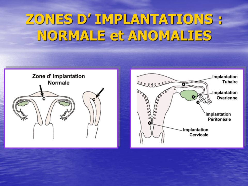 ZONES D' IMPLANTATIONS : NORMALE et ANOMALIES