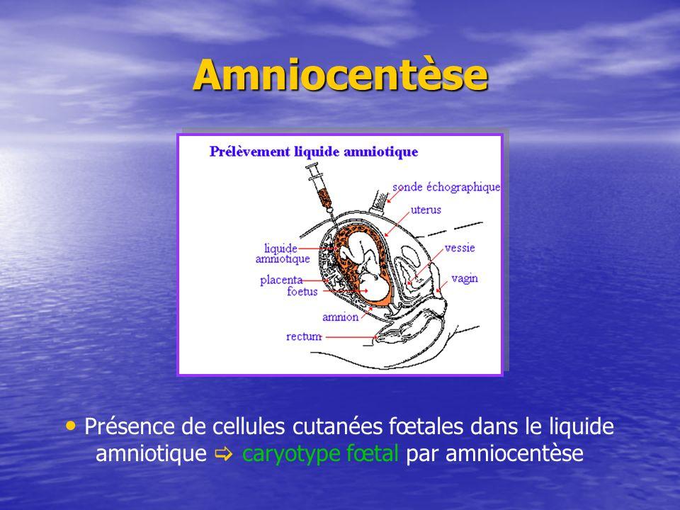 Amniocentèse Présence de cellules cutanées fœtales dans le liquide amniotique  caryotype fœtal par amniocentèse.