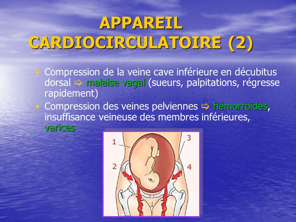 APPAREIL CARDIOCIRCULATOIRE (2)