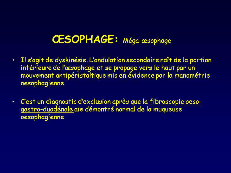 ŒSOPHAGE: Méga-œsophage