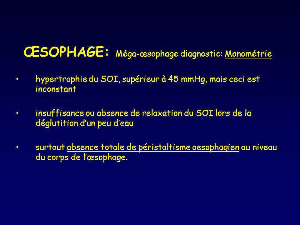 ŒSOPHAGE: Méga-œsophage diagnostic: Manométrie